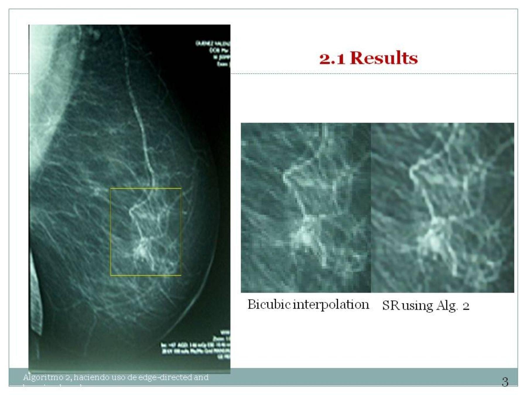 Innovador software creado por investigadores peruanos para mejorar resolución de imágenes de diagnóstico médico. Foto: FINCyT