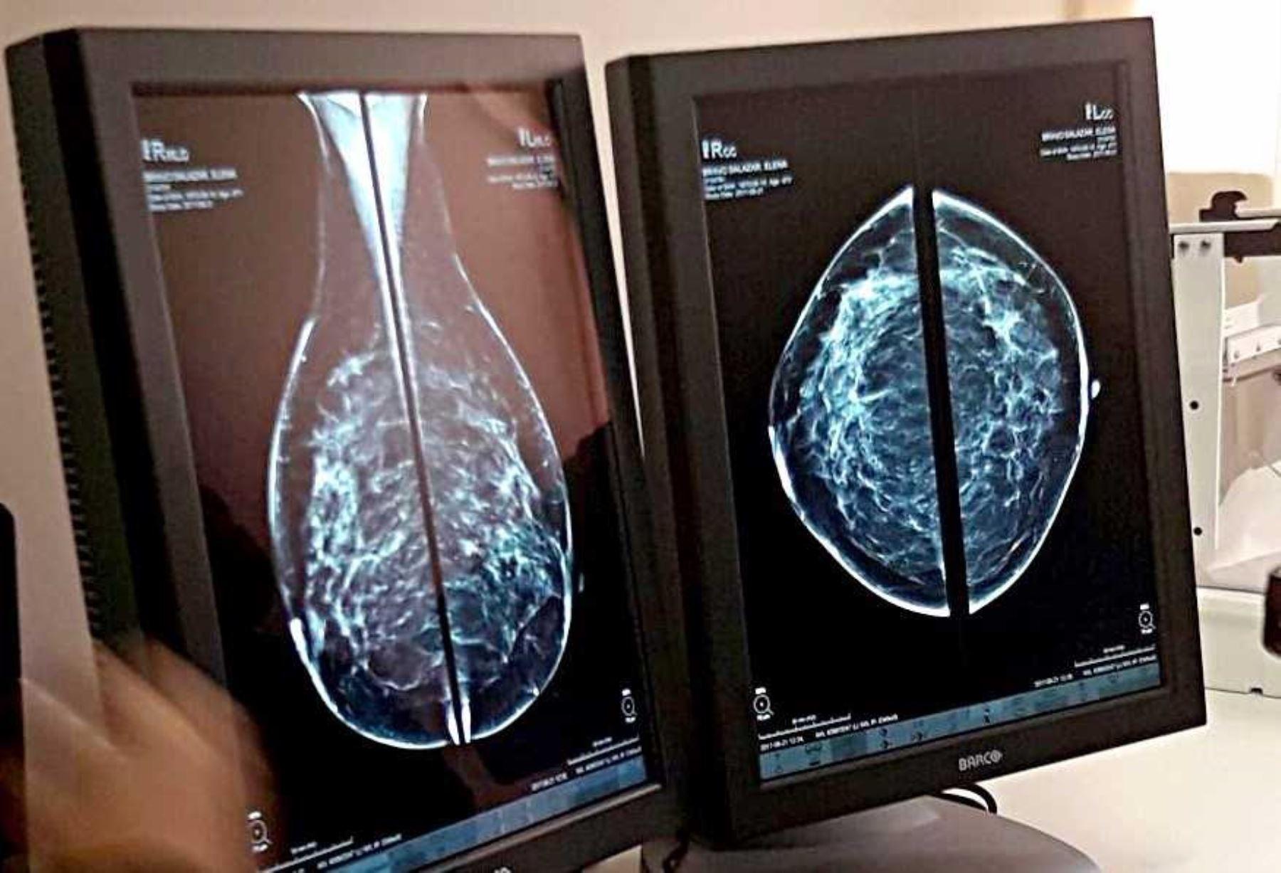 Las regiones de Junín y Puno lideran el acceso a las telemamografías para el diagnóstico oportuno del cáncer de mama, servicio del Ministerio de Salud (Minsa) que registra hasta ahora 1,056 atenciones a igual número de pacientes mujeres a escala nacional.