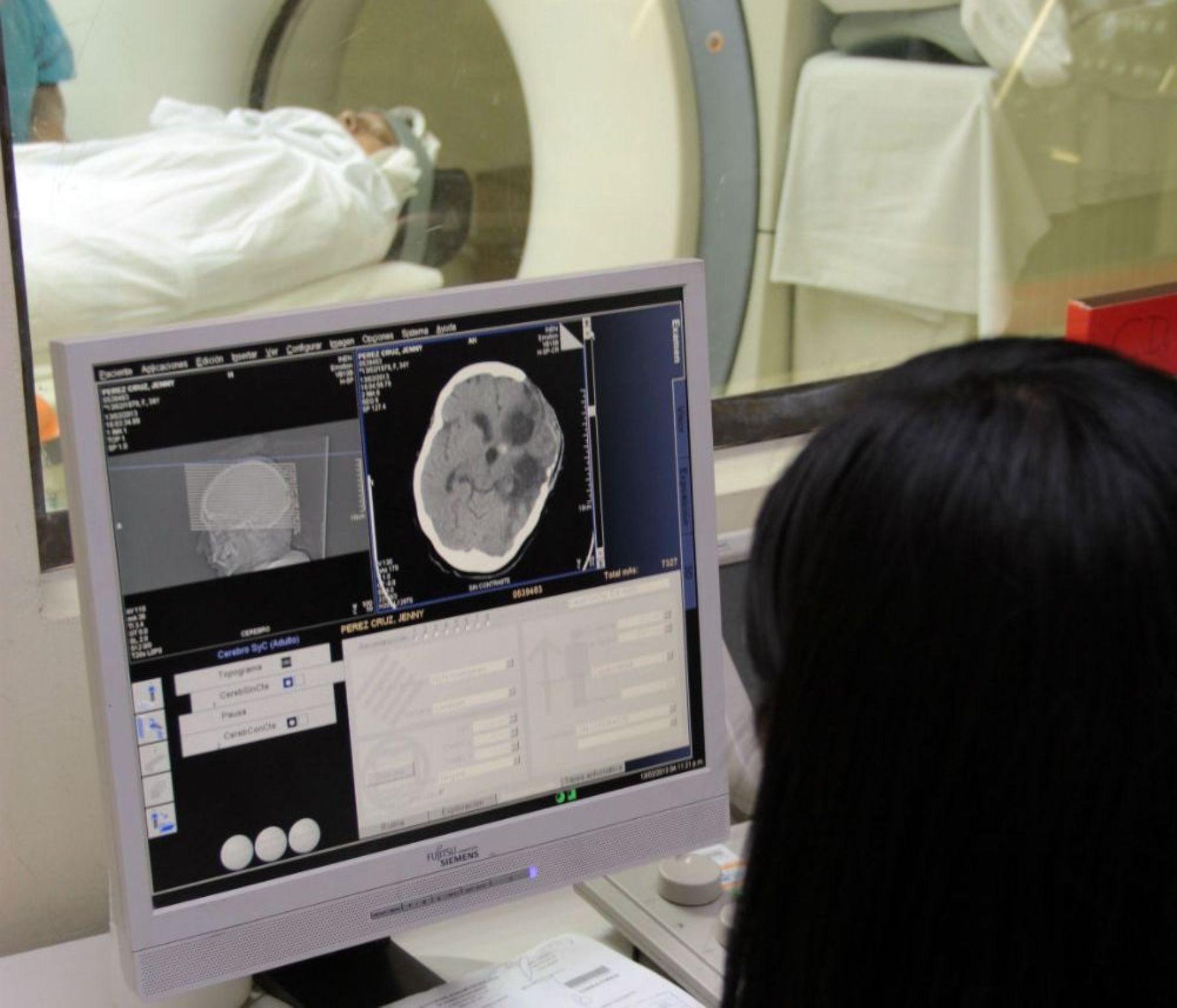 Identifique a tiempo las señales de un ataque cerebrovascular. Foto: ANDINA/Difusión.