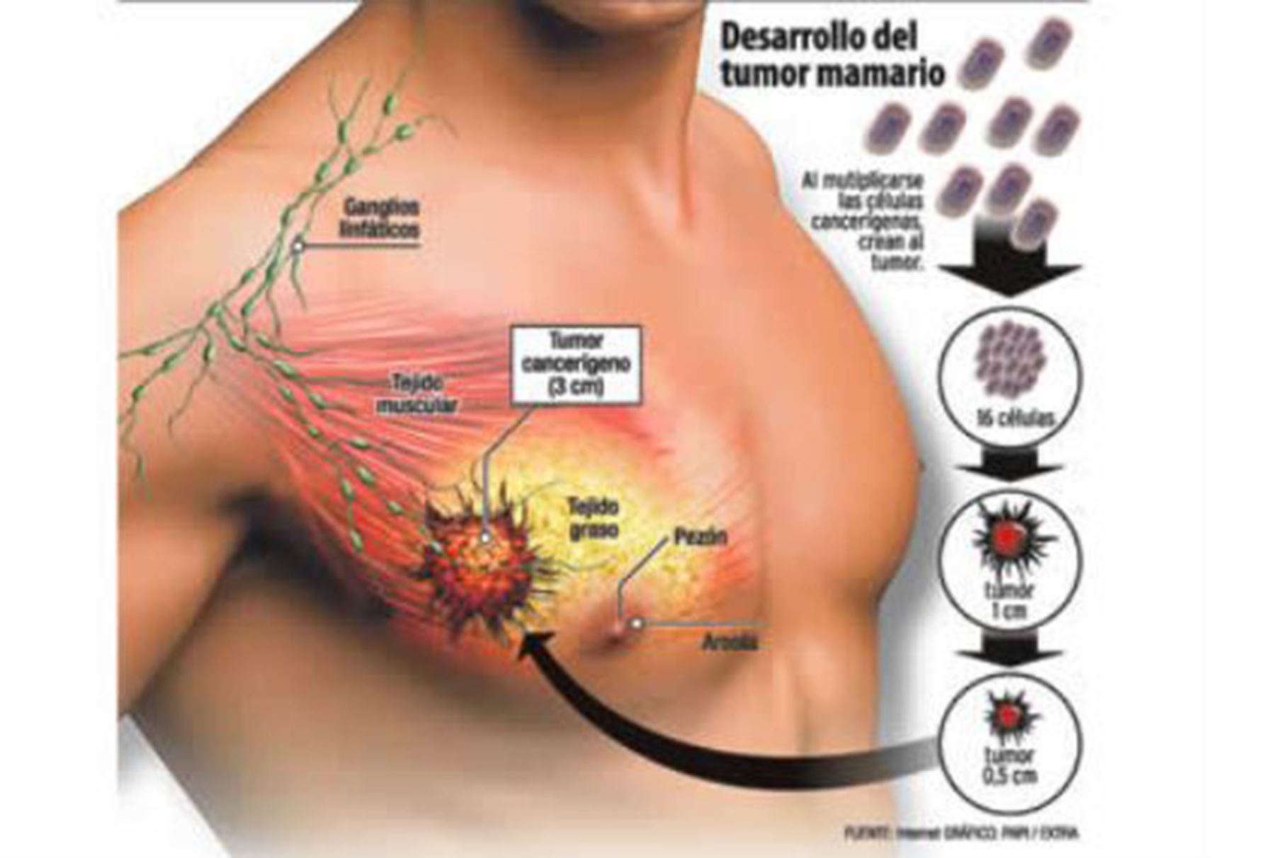 cancer pecho hormonal programe de detoxifiere