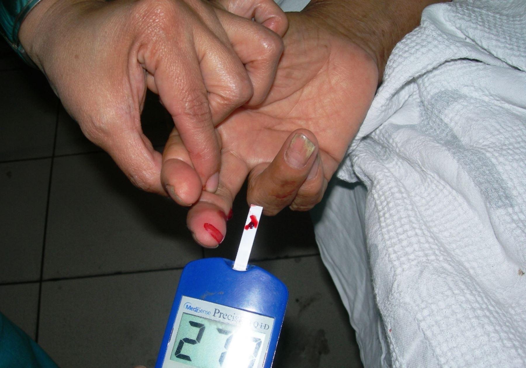Casos de diabetes en Lima se incrementaron de 4 % a 8  % en última década. Foto: ANDINA/Difusión.