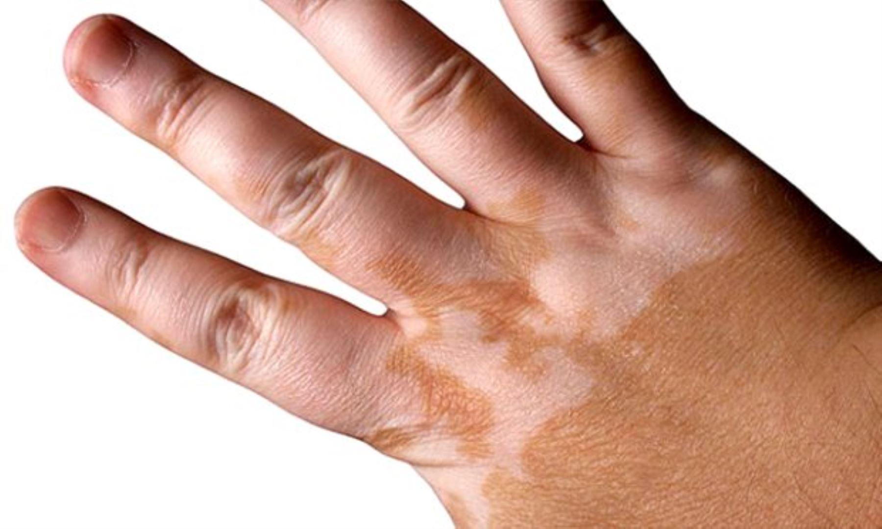 Estrés y ansiedad incrementan casos de manchas sin color en la piel. Foto: ANDINA/Difusión.