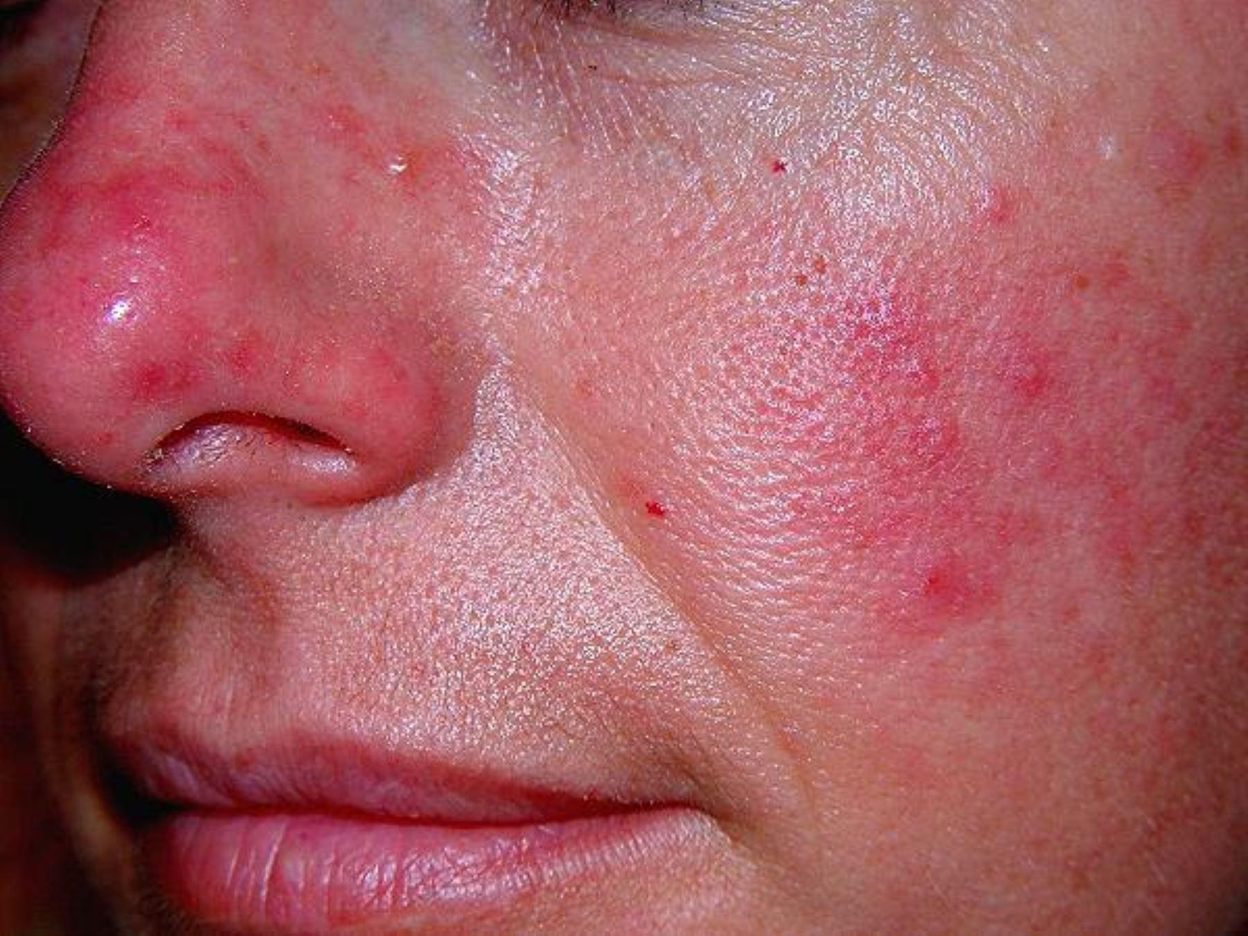 Resultado de imagen para dermatitis por frio