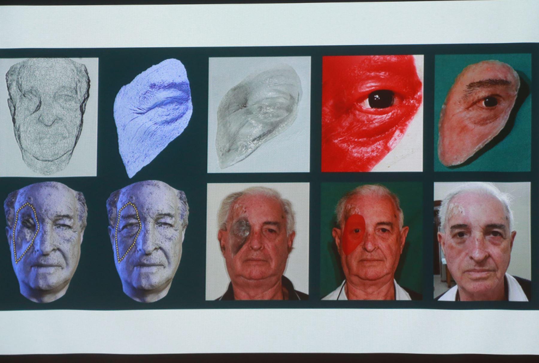 El joven cirujano dentista, Rodrigo Salazar Gamarra propone la creación de un programa nacional de rehabilitación maxilofacial para pacientes que sufren cáncer en la boca pues accedería a prótesis facial. ANDINA/Norman Córdova