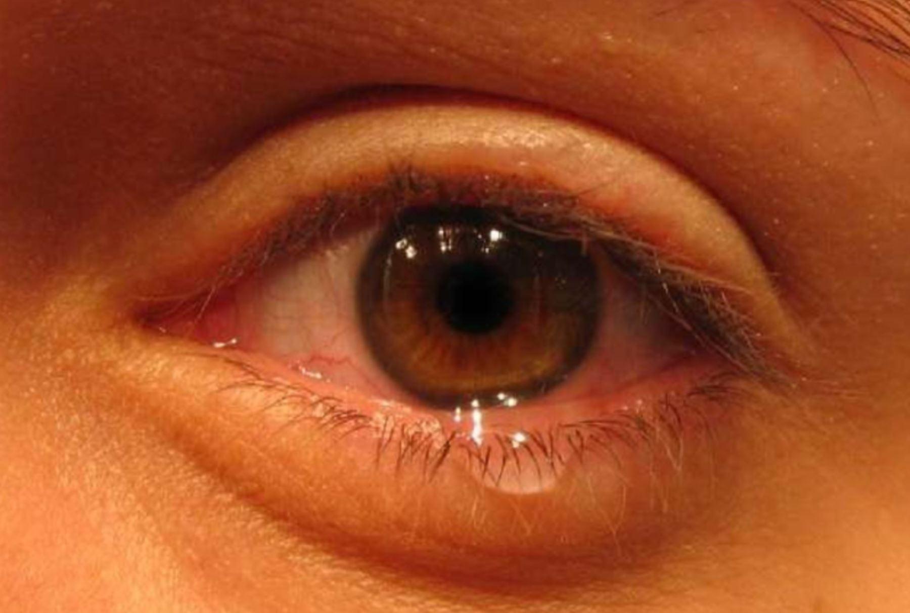 Alergia en los ojos