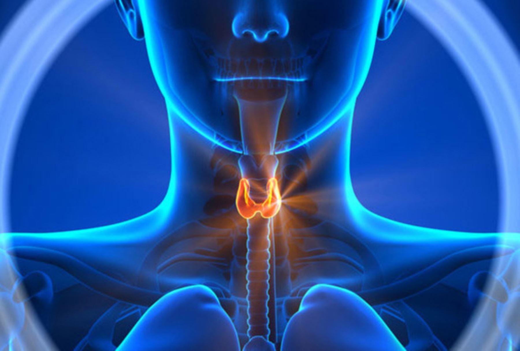 Es la tercera neoplasia más común en mujeres peruanas, luego del cáncer de mama y de cuello uterino. ANDINA/Difusión