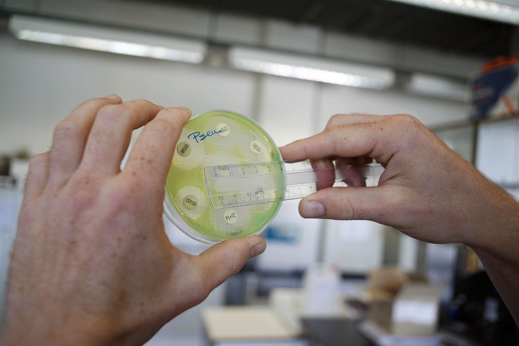 Las bacterias que sobreviven a nuestro abuso de los antibióticos generan cepas nuevas capaces de resistir los fármacos tradicionales. Foto: AFP