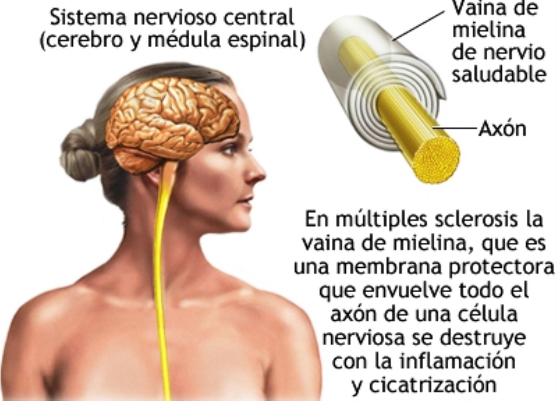 Siete de cada 100 mil peruanos sufren de esclerosis múltiple. Foto: ANDINA/Difusión.