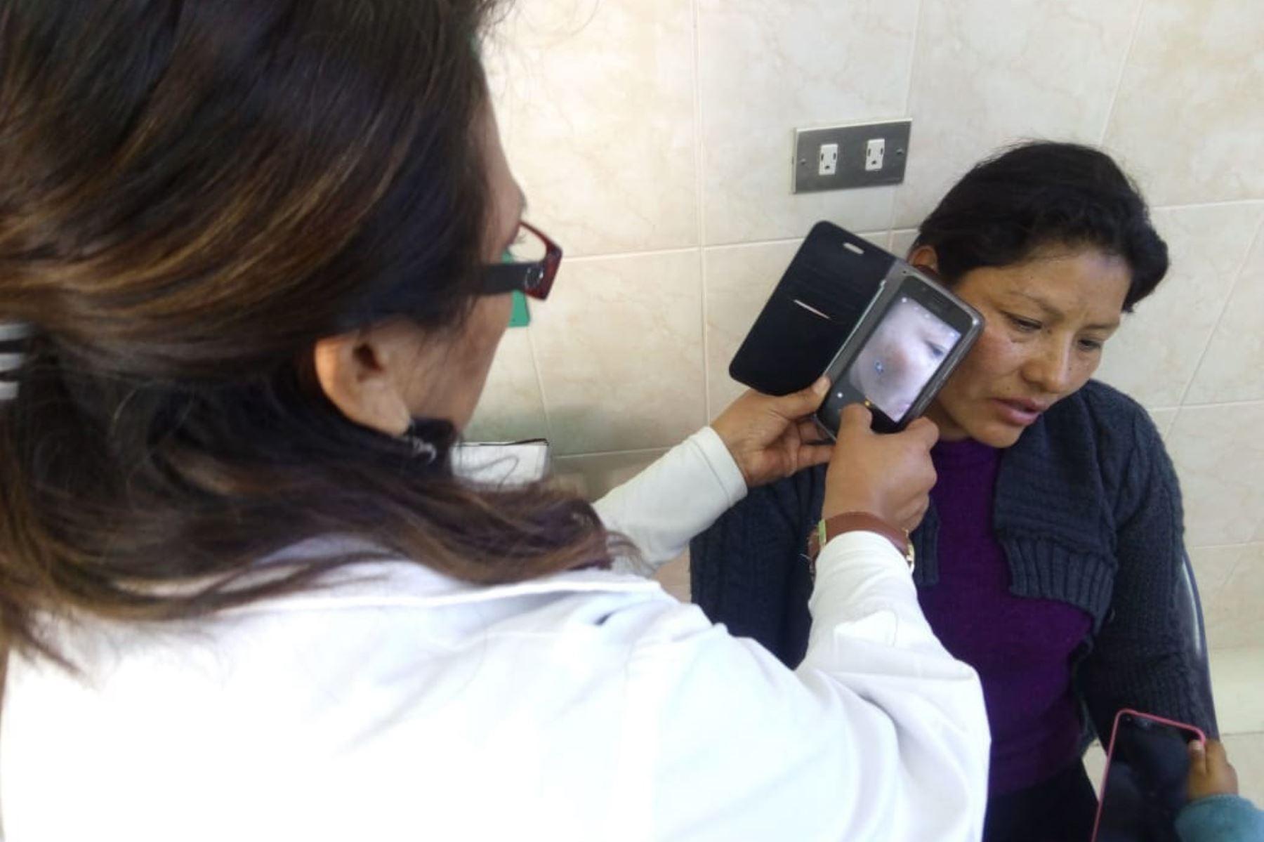 Presentan en Arequipa aplicativo móvil para detectar cáncer de piel. ANDINA