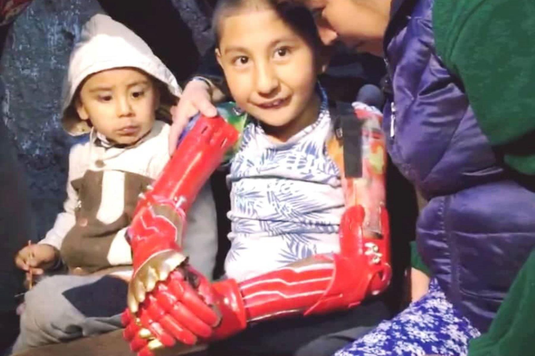 Niño cusqueño recibe prótesis de brazos elaboradas con impresión 3D. Foto: ANDINA/Difusión.
