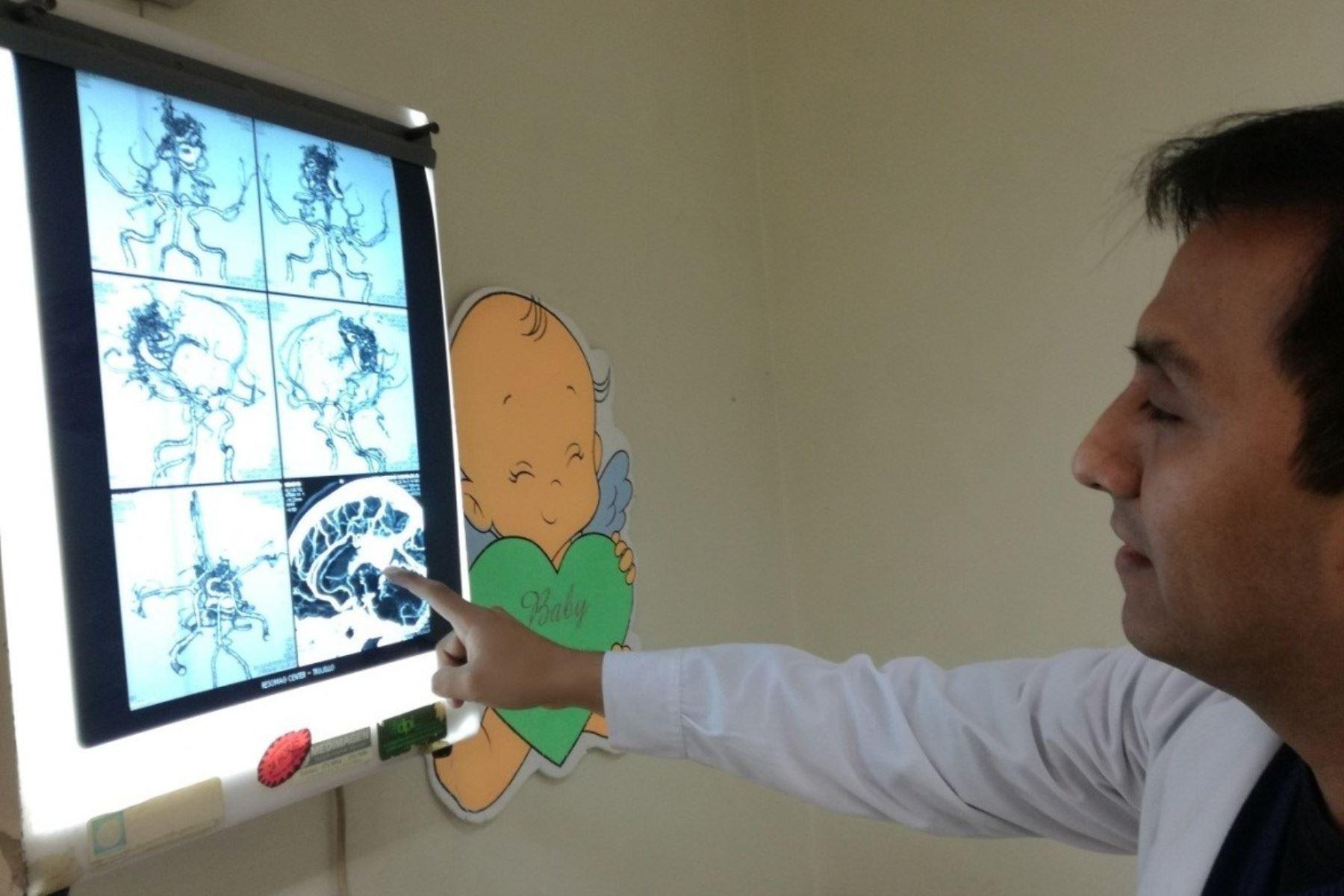 ¡Cuidado!, niños también pueden sufrir de aneurisma cerebral. Foto: ANDINA/Difusión.