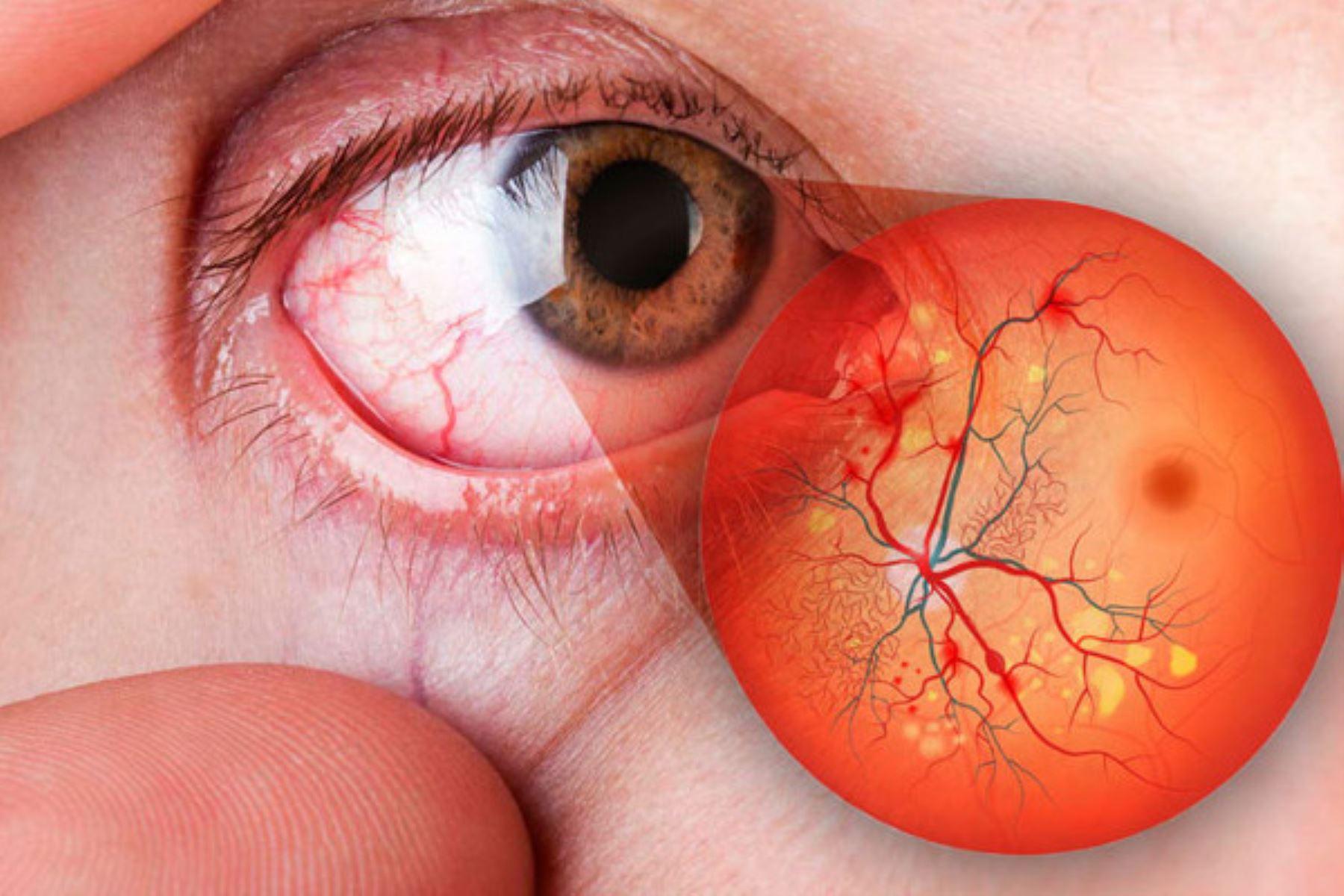 Conoce cómo puede afectar la diabetes a tus ojos | Noticias | Agencia Peruana de Noticias Andina