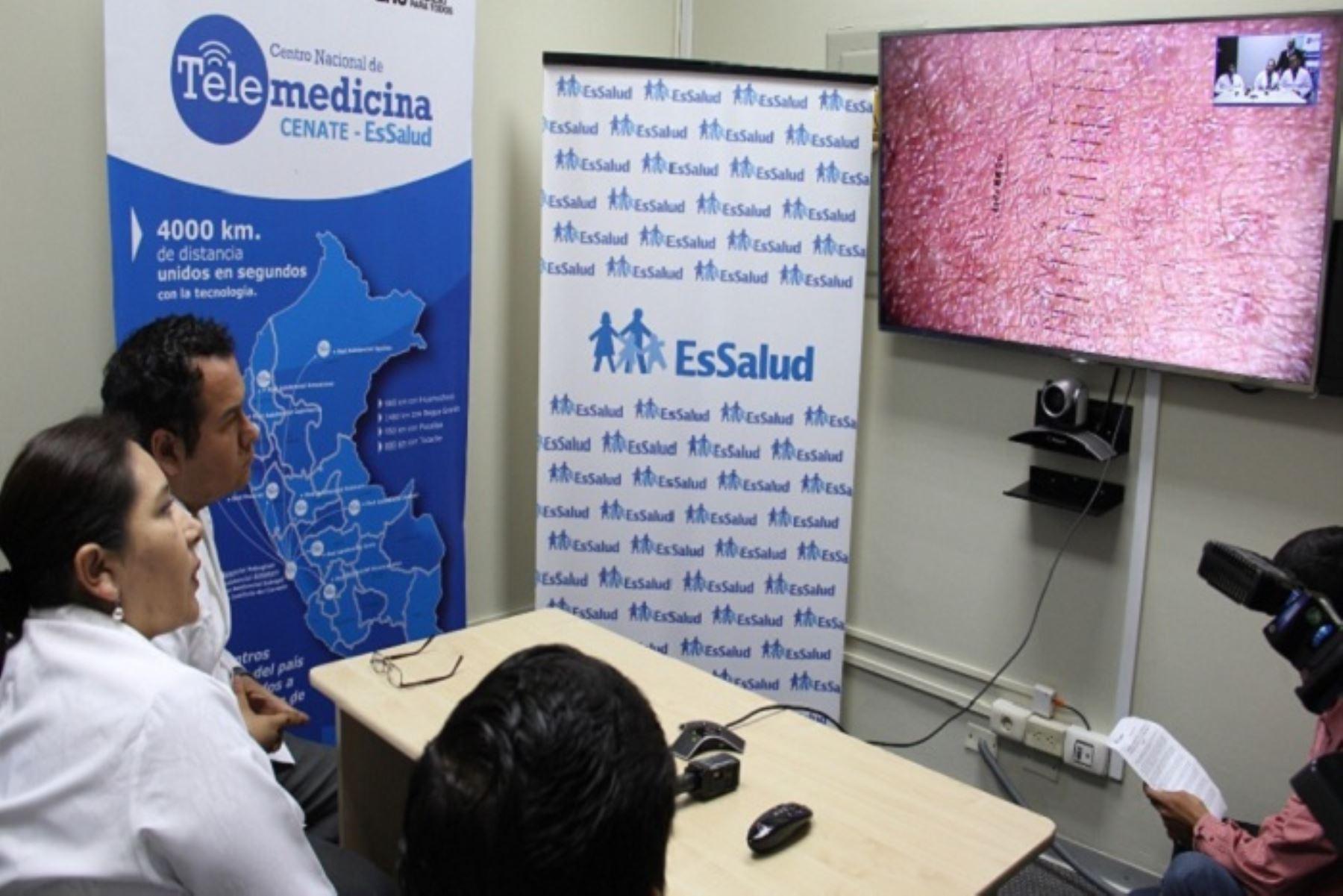 A la fecha, 14,756 pacientes de las zonas más alejadas del país se han beneficiado con el sistema de Telemedicina que EsSalud implementó a nivel nacional para brindar, en tiempo real, atención médica, en distintas especialidades.