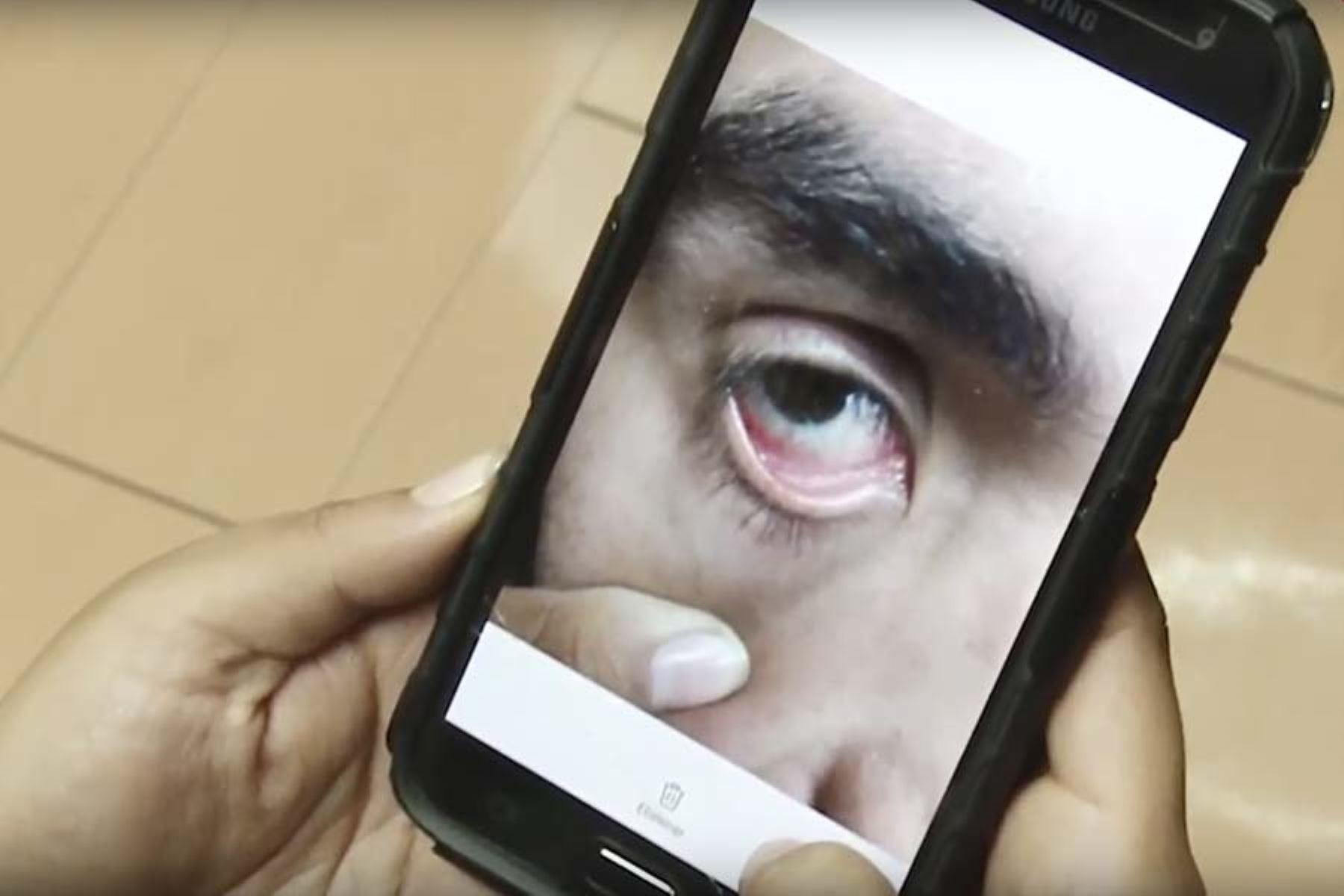 El algoritmo de inteligencia artificial analizará las imágenes de la conjuntiva de los ojos de los pacientes. Foto: Andina