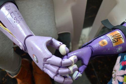 Pixed fabrica prótesis impresas en 3D para personas con discapacidad.