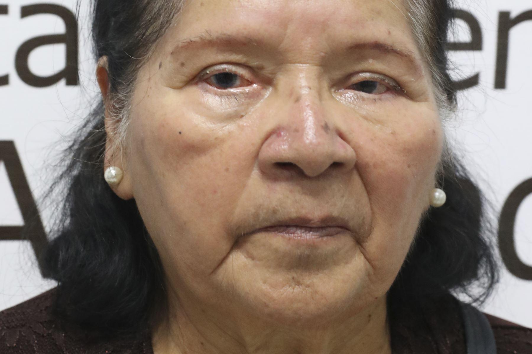 Luisa Remuzgo Sánchez de 80 años, ama de casa, diagnosticada con descompensación corneal, espero 3 años y medio por su transplante. Foto: ANDINA/Melina Mejía
