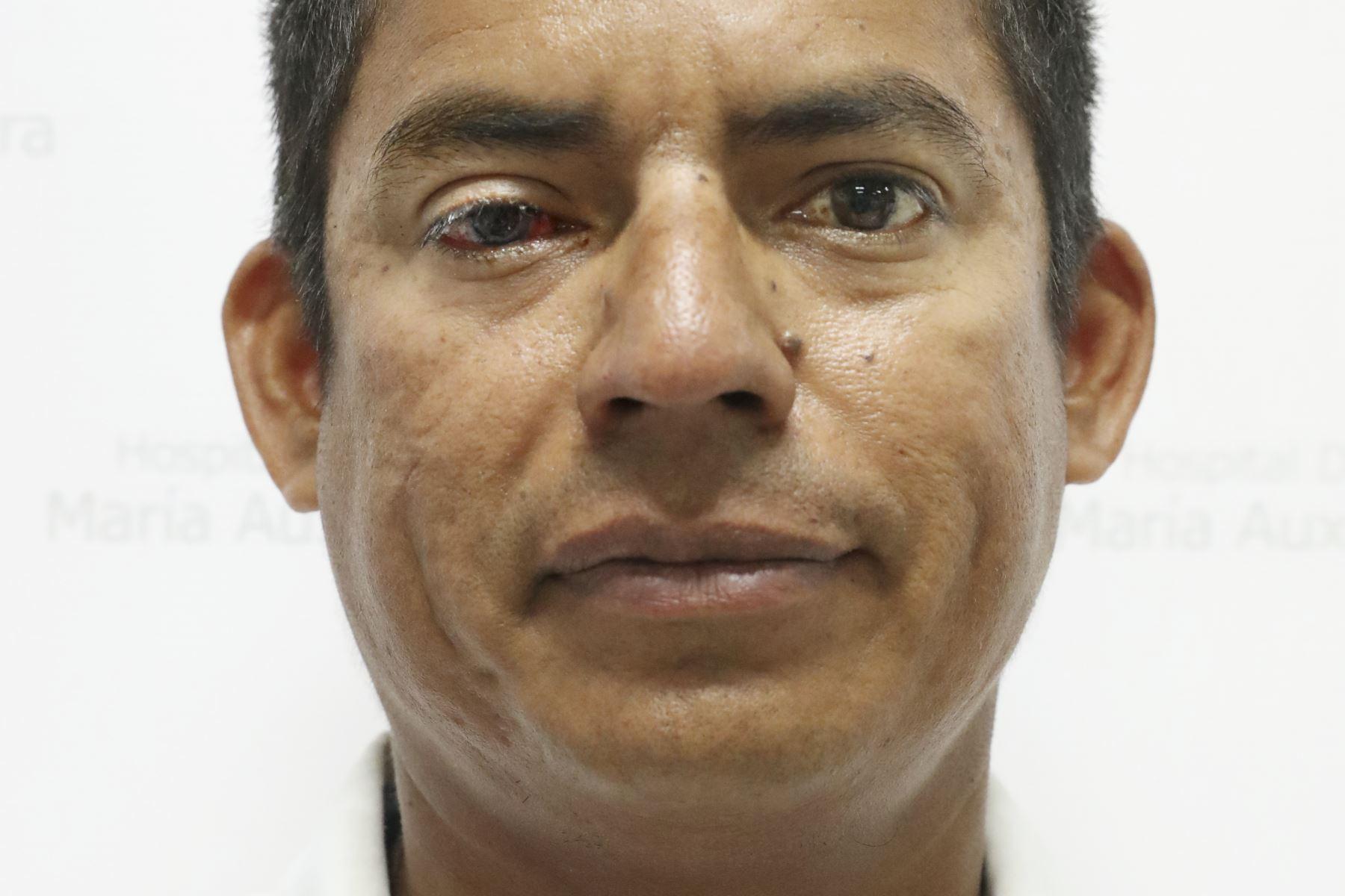 Christian Huayama Peña de 40 años, profesor, diagnosticado con leucoma por herpes, espero 4 años por su transplante. Foto: ANDINA/Melina Mejía