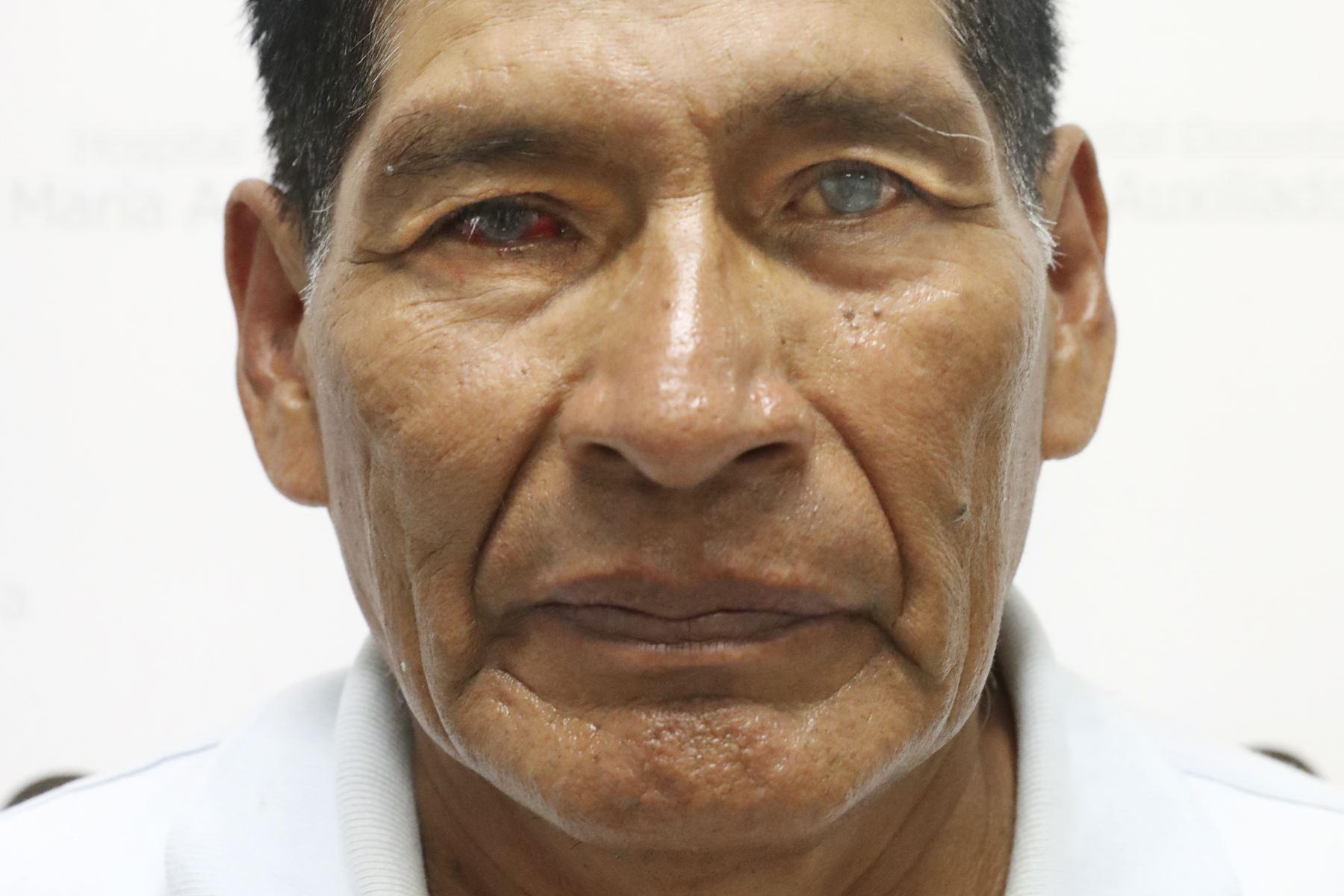 José Huamaní Vera de 69 años, pintor, diagnosticado con un proceso degenerativo,  espero 5 años por su transplante. Foto: ANDINA/Melina Mejía