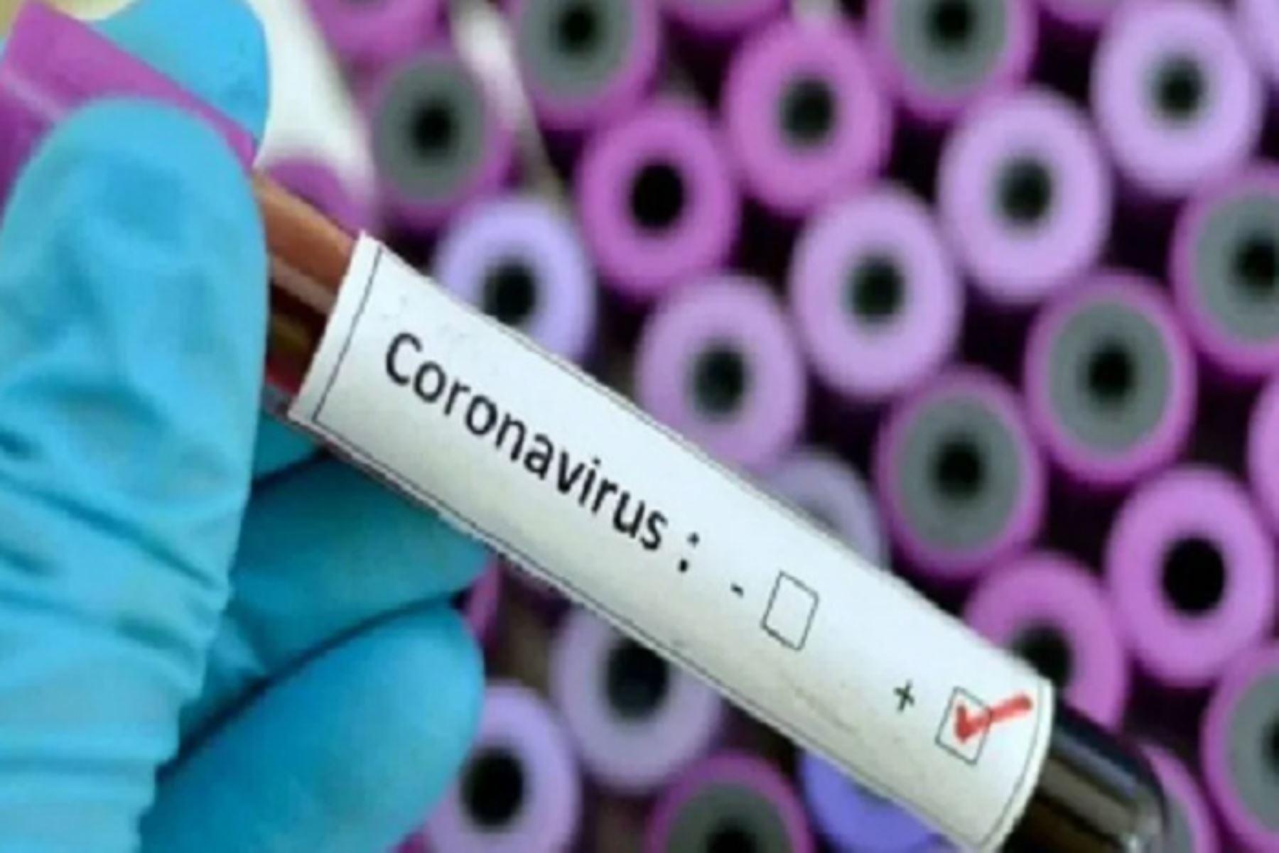 La región Moquegua reportó hoy su primer caso positivo de coronavirus covid-19. ANDINA/Difusión