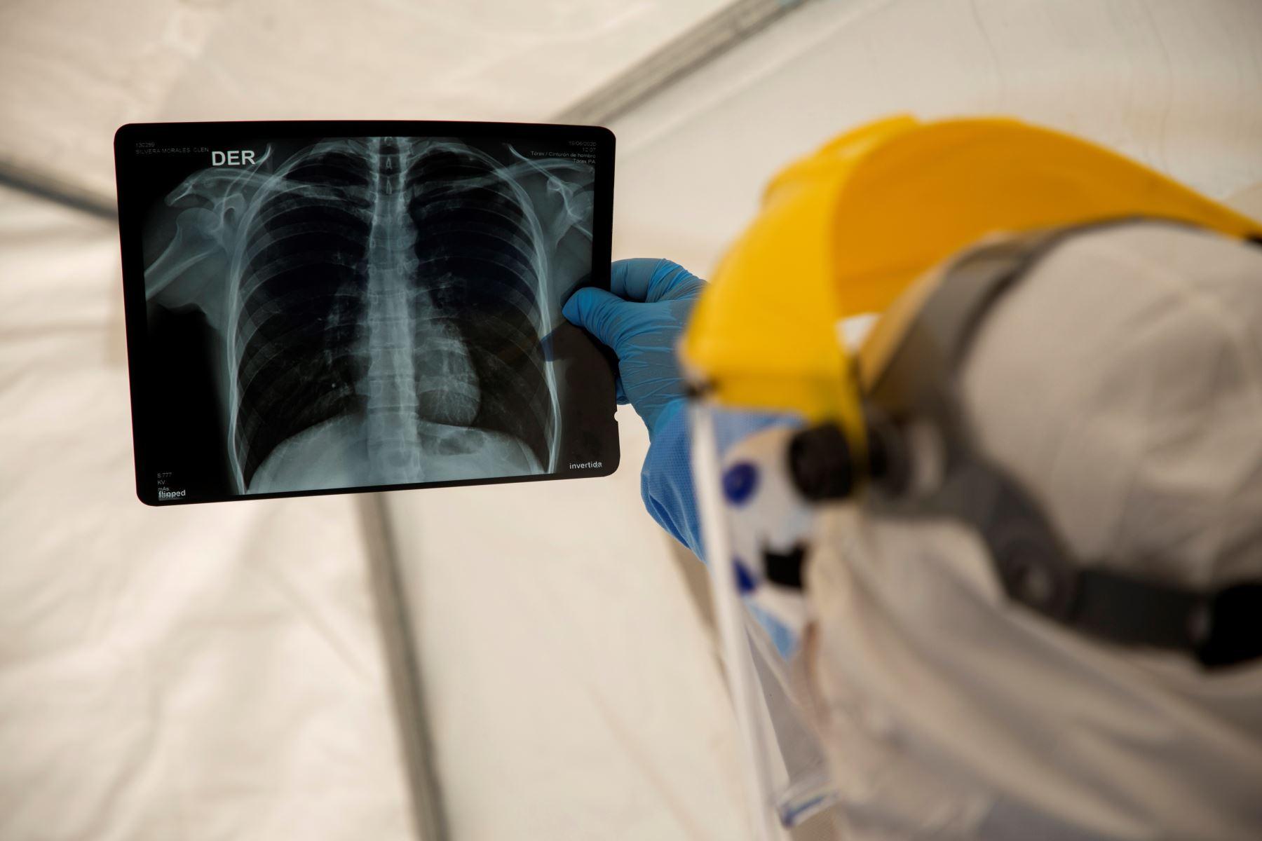Ecuador registró en 2018 un promedio de 23 médicos y 15 enfermeras por cada 10,000 habitantes, según los datos oficiales más recientes. Foto: EFE/Archivo