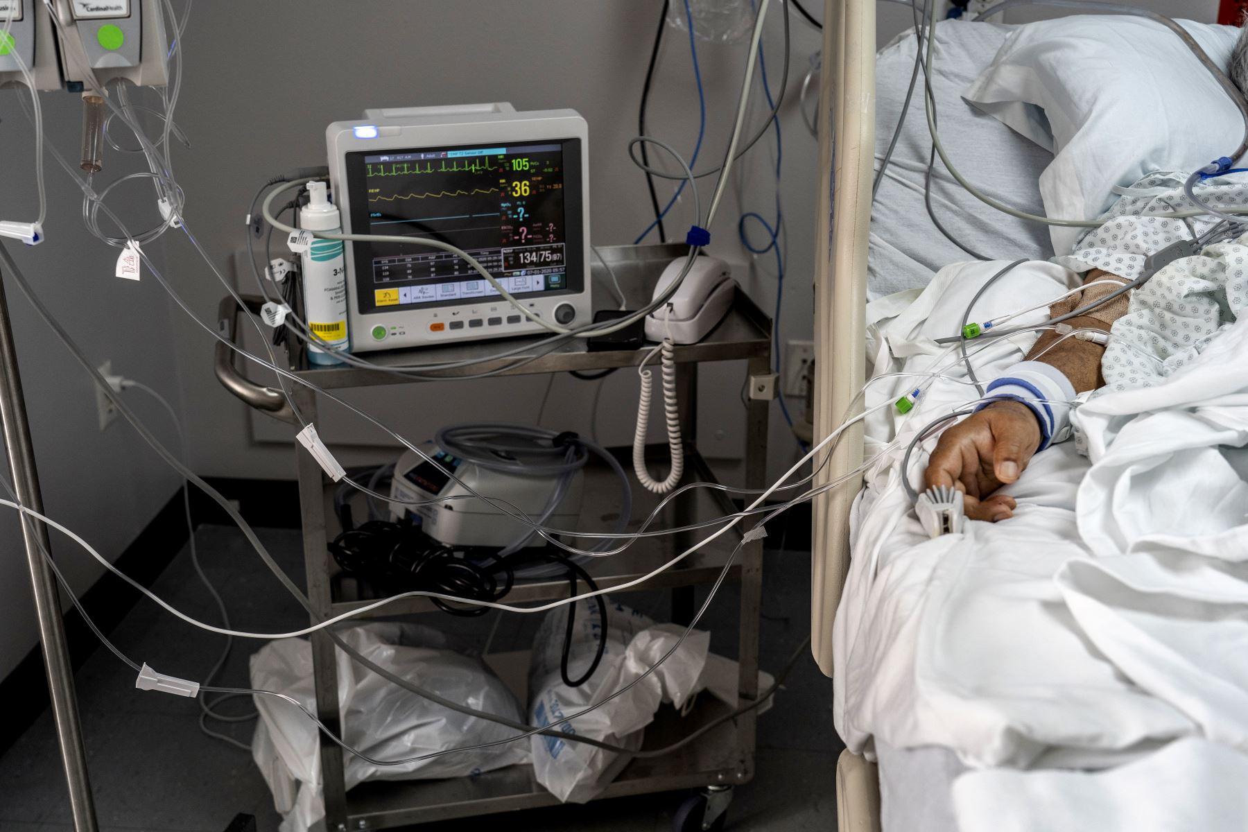 Un paciente yace en la cama conectado al equipo médico en la unidad de cuidados intensivos por covid-19 en el United Memorial Medical Center en Houston, Texas. Foto: AFP