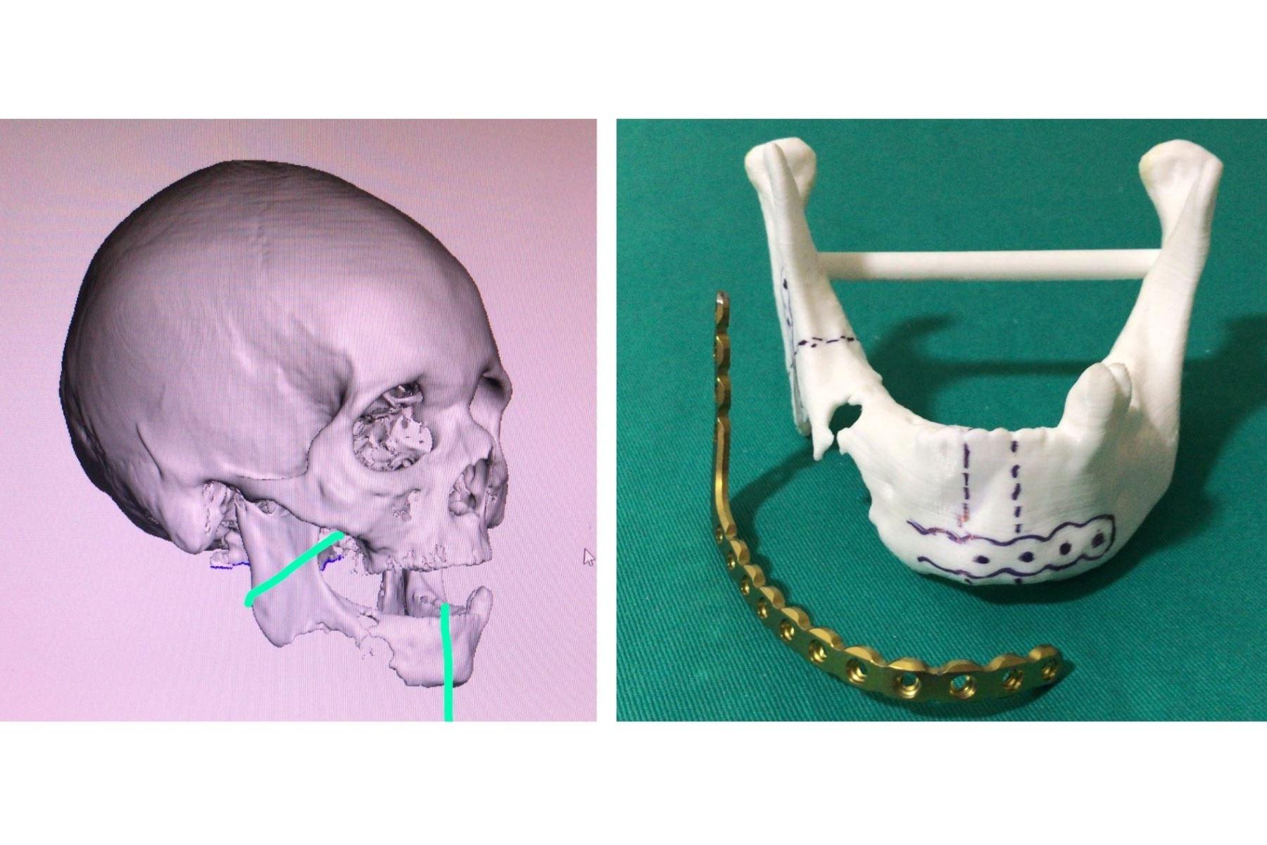 Exitosa cirugía de reconstrucción de mandíbula en el Cusco.