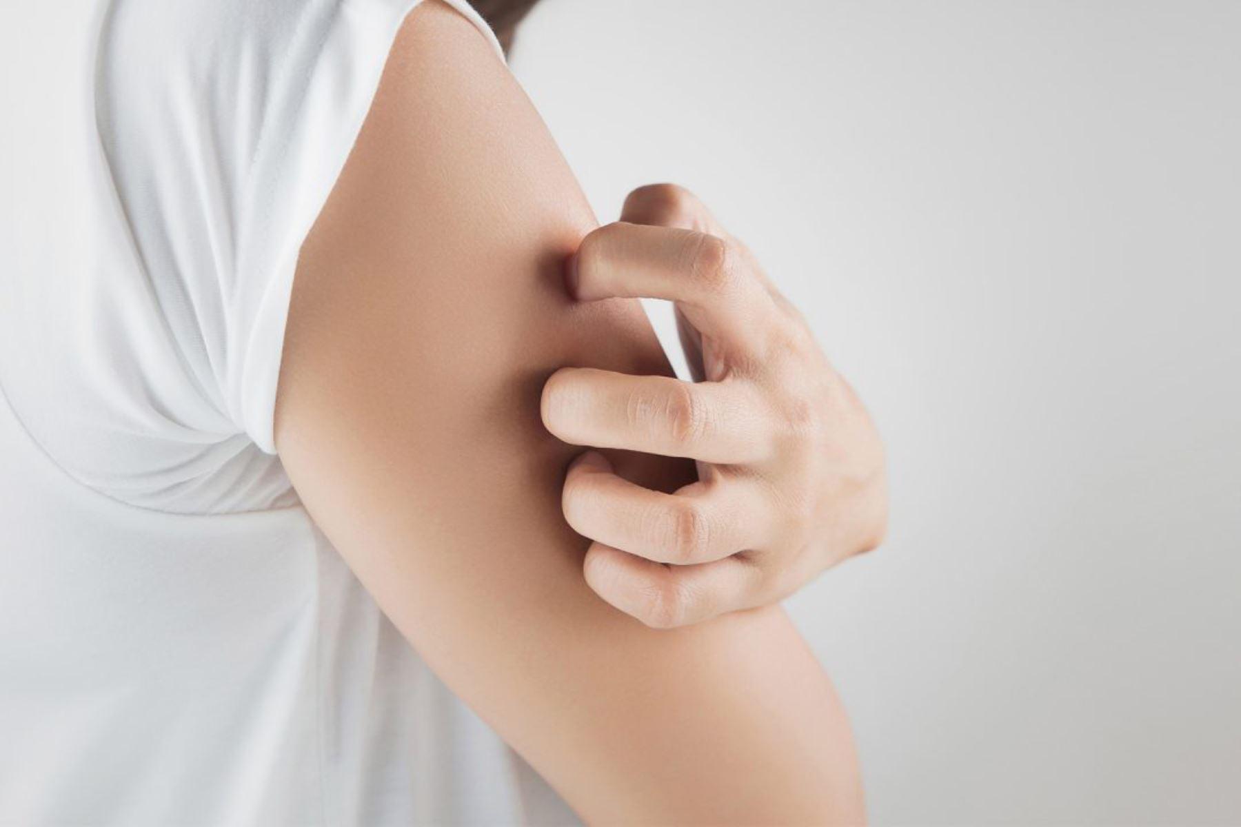 La neurodermatitis altera la condición de salud de la piel. Si la persona se rasca con fuerza provocará una alteración en ella como su engrosamiento, inflamación y hasta endurecimiento. ANDINA/Internet
