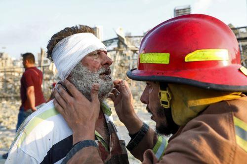 La misión de paz está trasladando a los cascos azules heridos a los hospitales más cercanos para recibir tratamiento médico. Foto: AFP