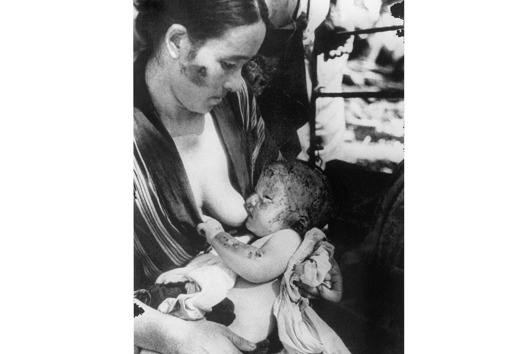 10 de agosto de 1945. Una mujer amamanta a su hijo quemado después del bombardeo atómico en Hiroshima por el ejército de los Estados Unidos. Foto: AFP