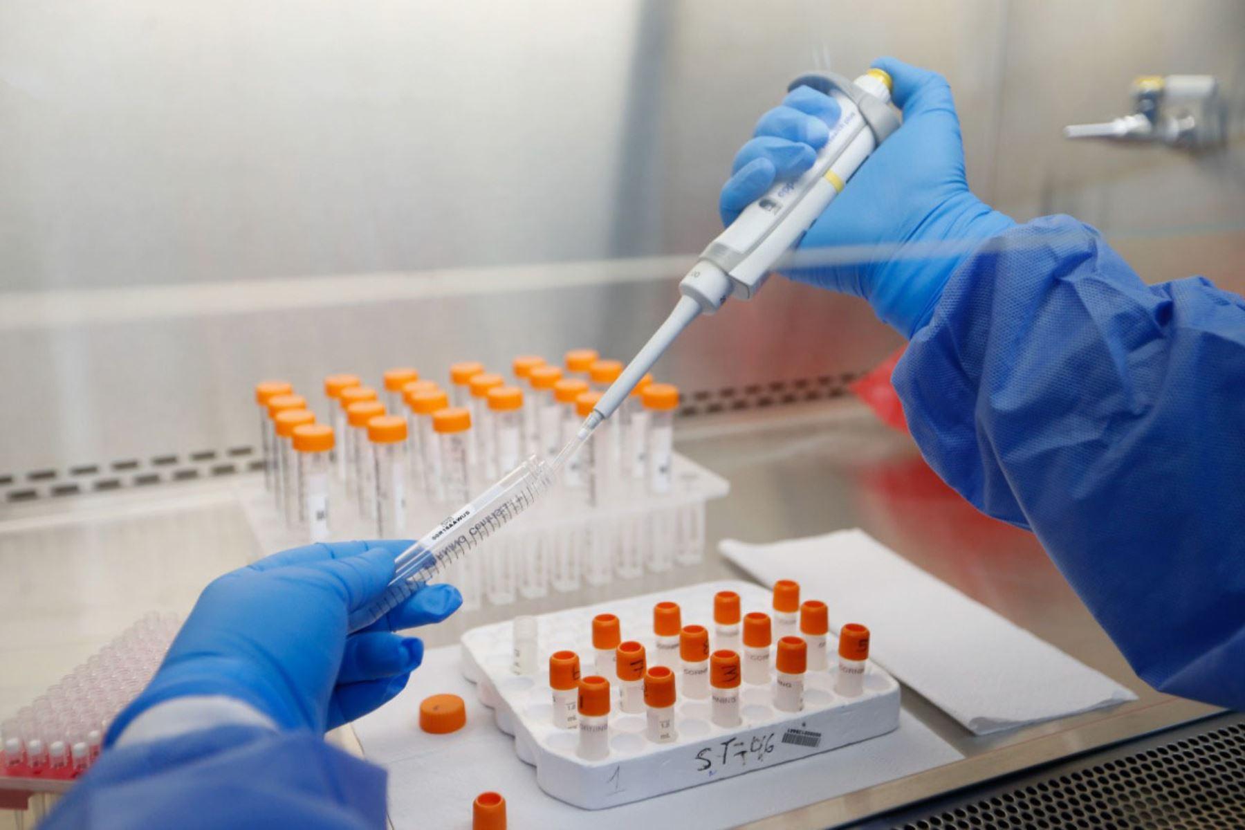 Perú ha procesado muestras para 2 millones 677,014 personas por covid-19 y se obtuvieron 507,996 casos confirmados. Foto: ANDINA/Difusión