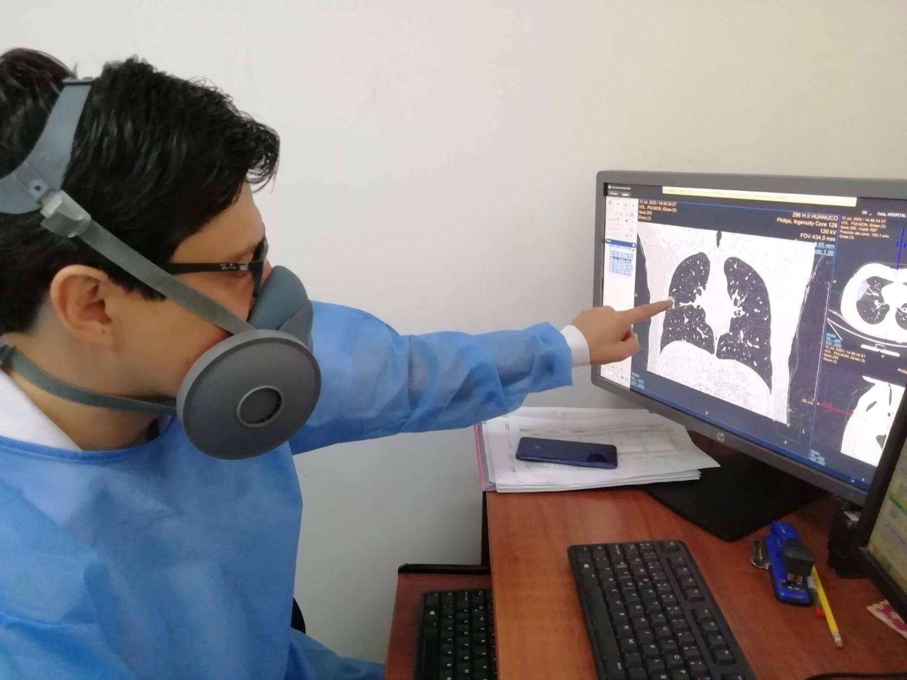 EsSalud amplía a 13 las especialidades médicas que atenderá vía teleconsultas a pacientes asegurados de la región Huánuco. ANDINA/Difusión