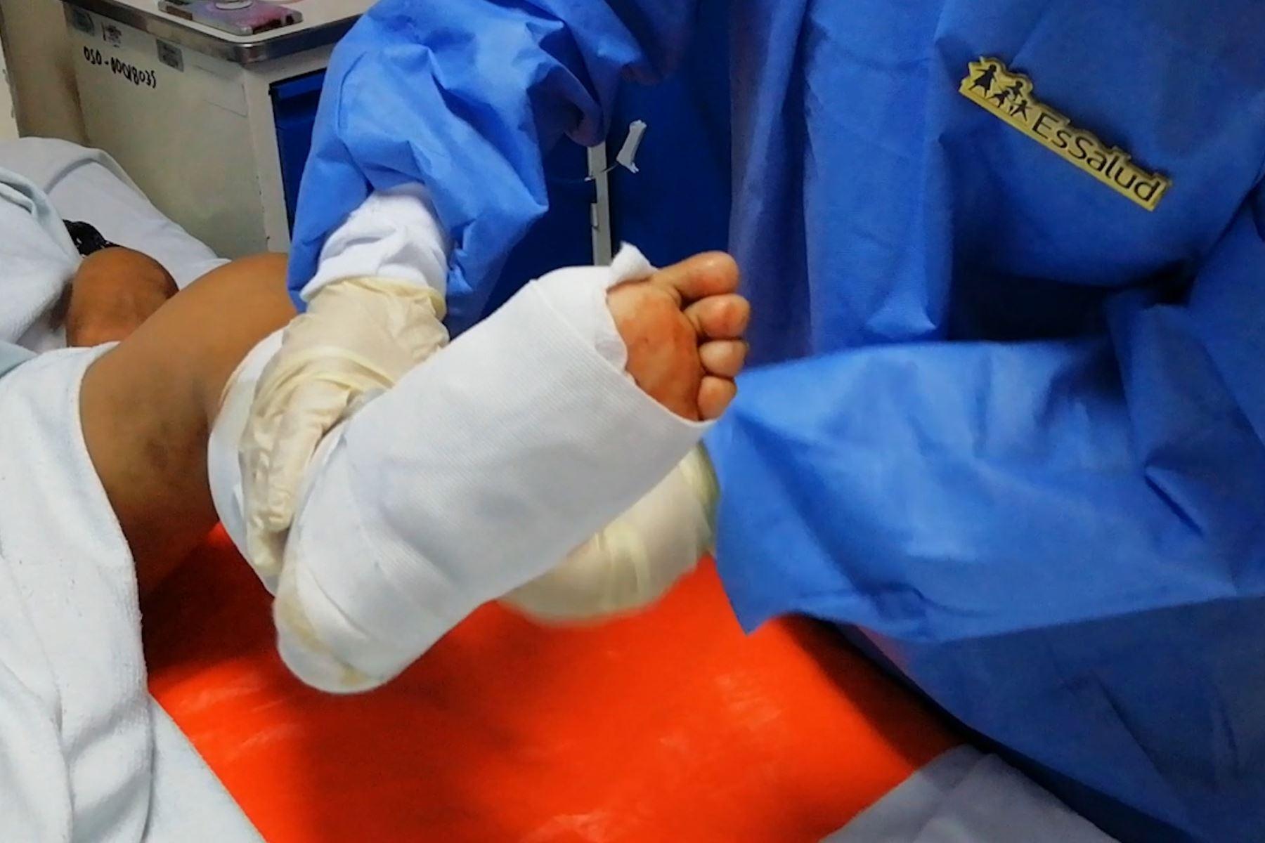 De no ser atendida adecuadamente y a tiempo, podría ocasionar la pérdida de la extremidad afectada. Foto: ANDINA/Prensa Presidencia