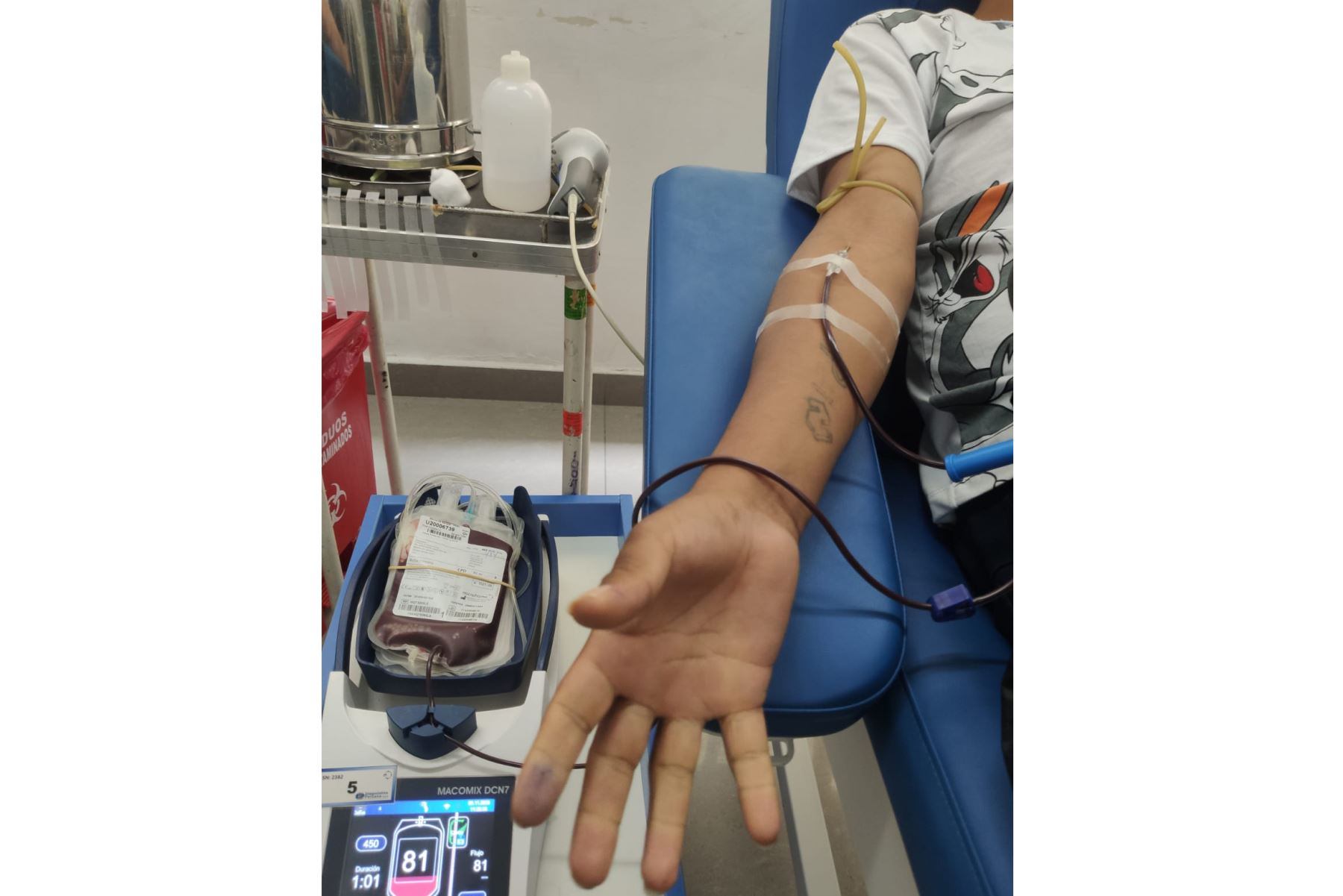 quieres-ayudar-a-pacientes-con-quemaduras-puedes-donar-sangre