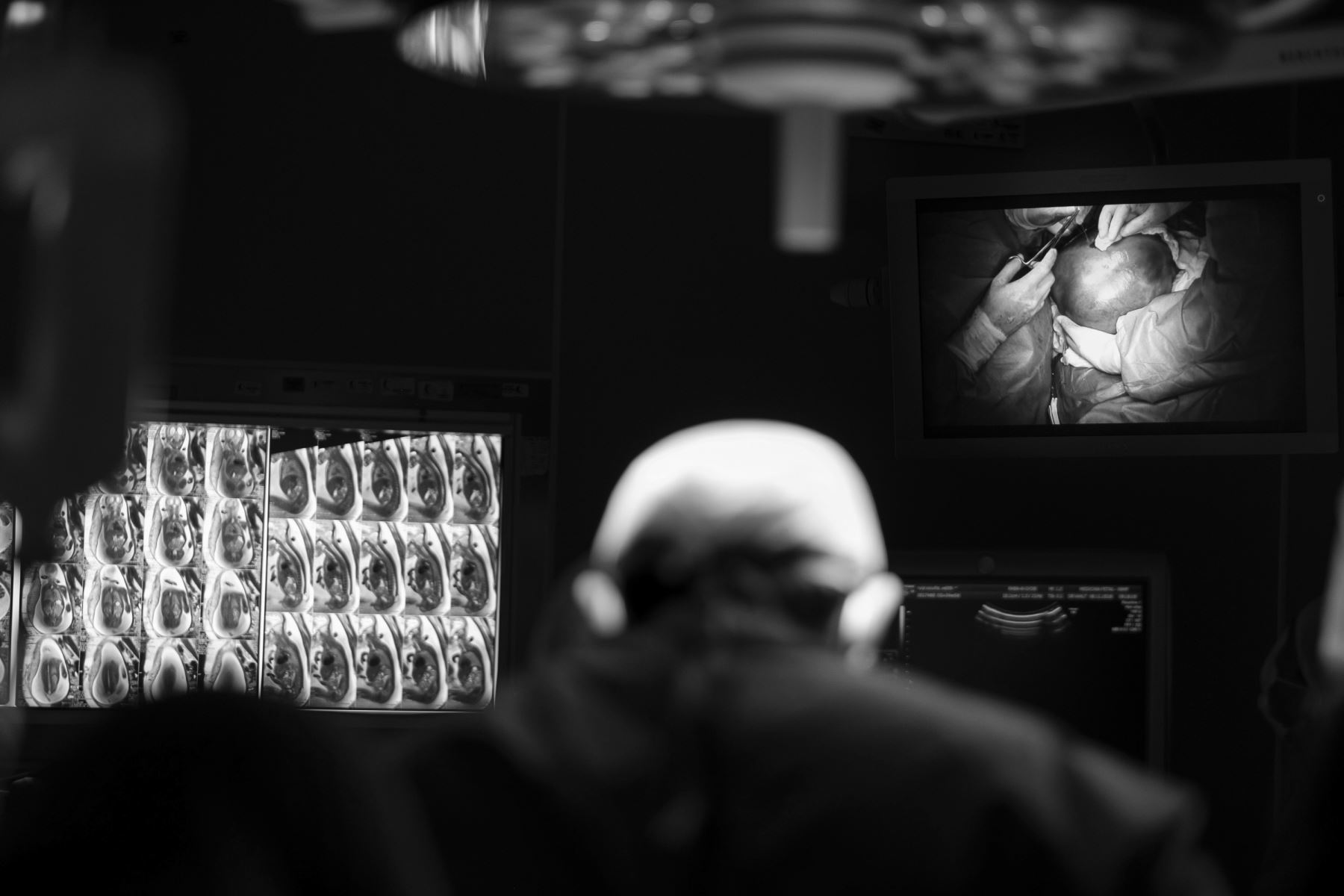 Los cirujanos están a punto de exteriorizar el útero por completo, es uno de los momentos más inquietantes de la cirugía. Foto: Ministerio de Salud/ Miguel Mejía