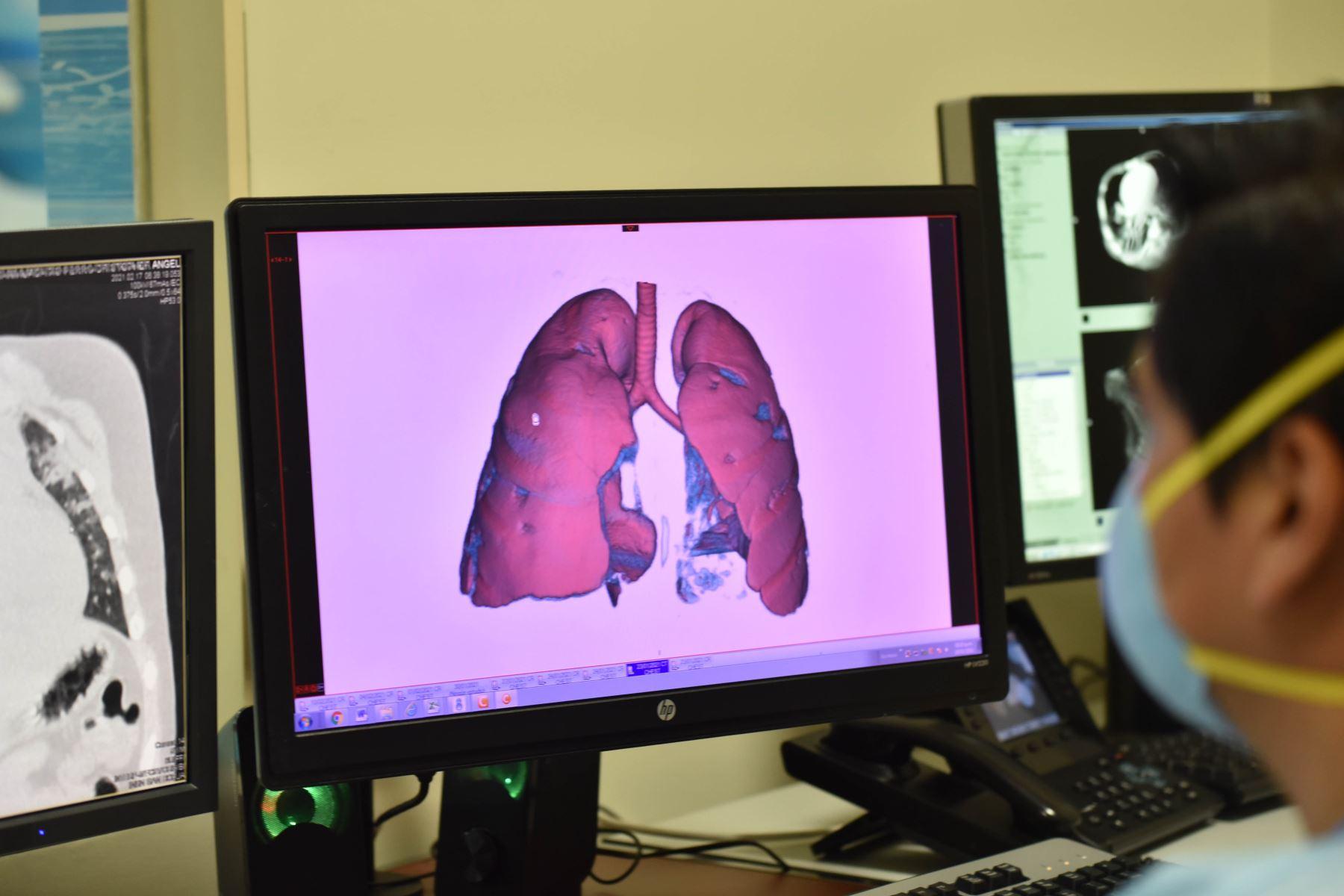 alerta-adolescentes-con-coronavirus-estan-llegando-a-uci-con-gran-dano-pulmonar
