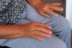 Parkinson puede comenzar con temblor de las manos en reposo y pasos cortos al caminar. Foto: ANDINA/EsSalud