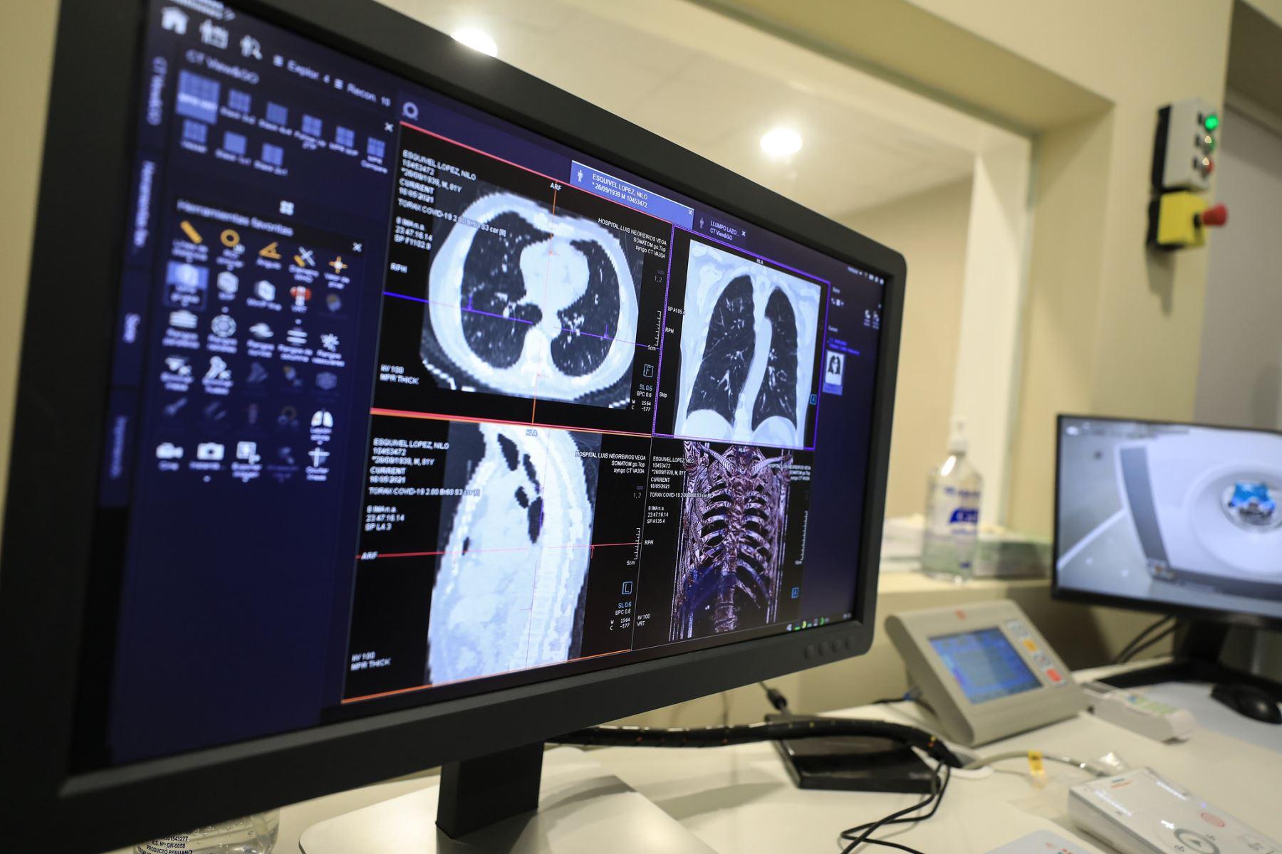 La presidenta ejecutiva de EsSalud, Fiorella Molinelli, participó en la puesta en marcha de camas UCI, tomógrafo y una planta generadora de oxigeno en Hospital Negreiros. Foto: ANDINA/Essalud