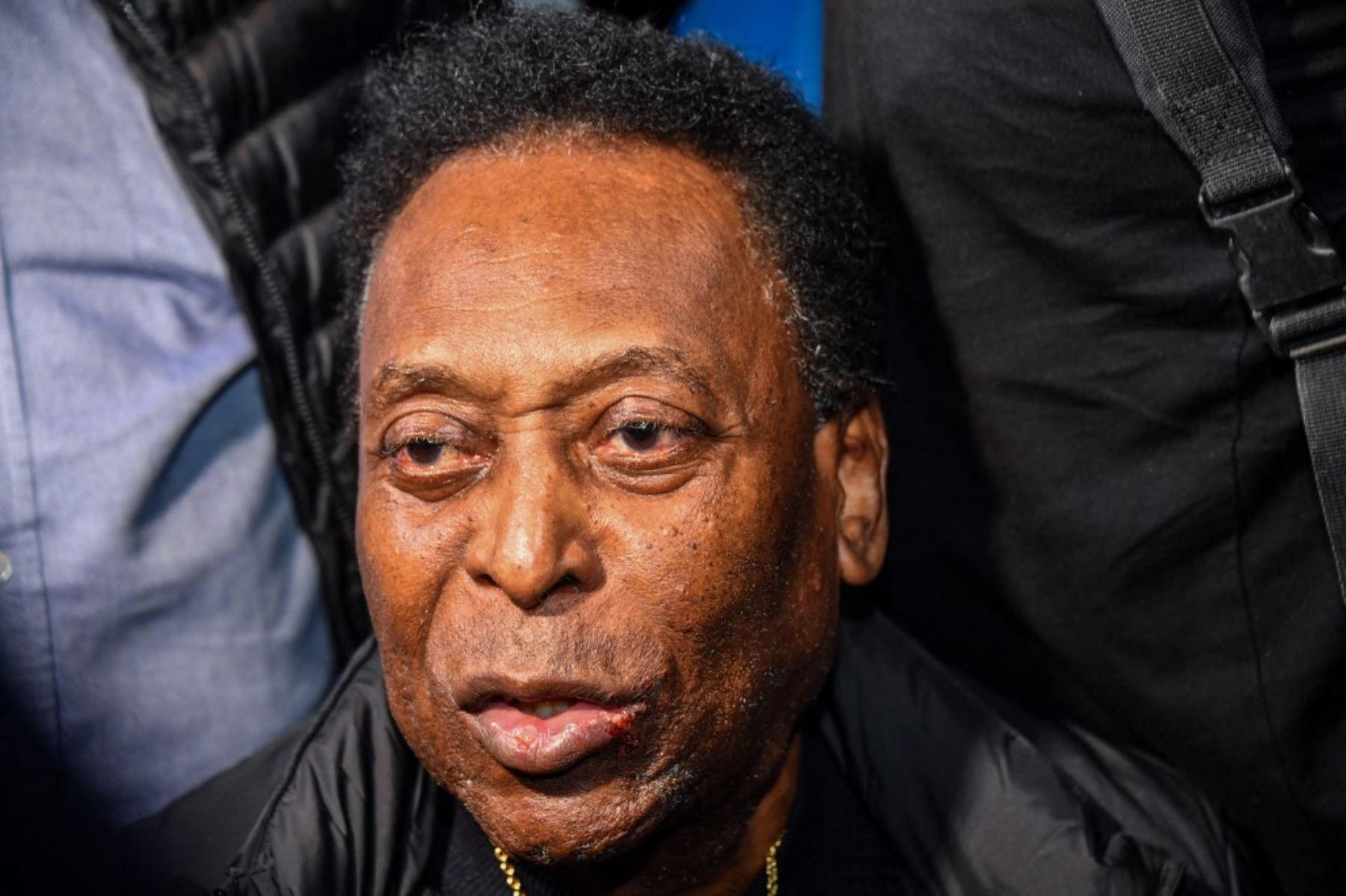 Pelé se recupera de una operación al colon