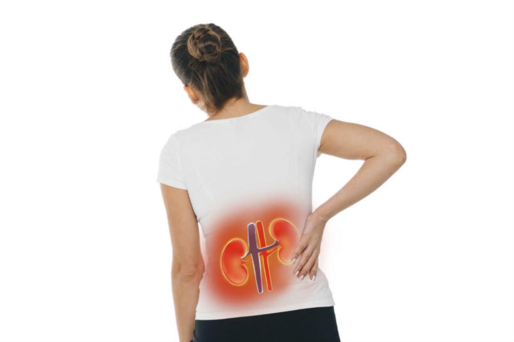 ¿Problemas en los riñones? Cinco señales para detectarlos a tiempo