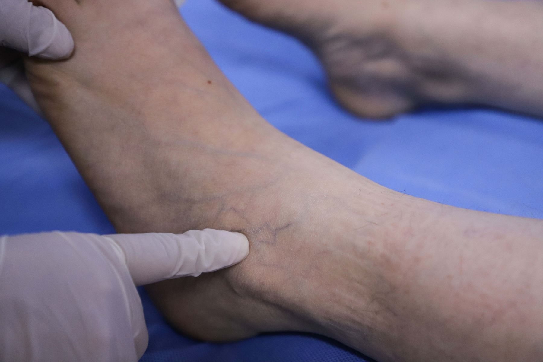 Hospital Edgardo Rebagliati reporta 60 mil casos asociados a trombosis en los últimos seis meses. Foto: ANDINA/Difusión.