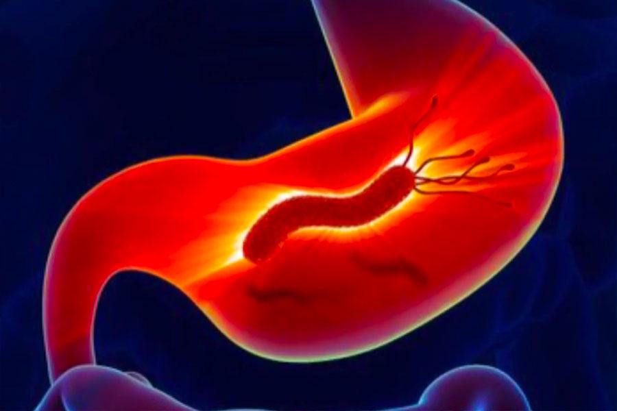 Helicobacter Pylori causa más del 50% de casos de gastritis en Latinoamérica